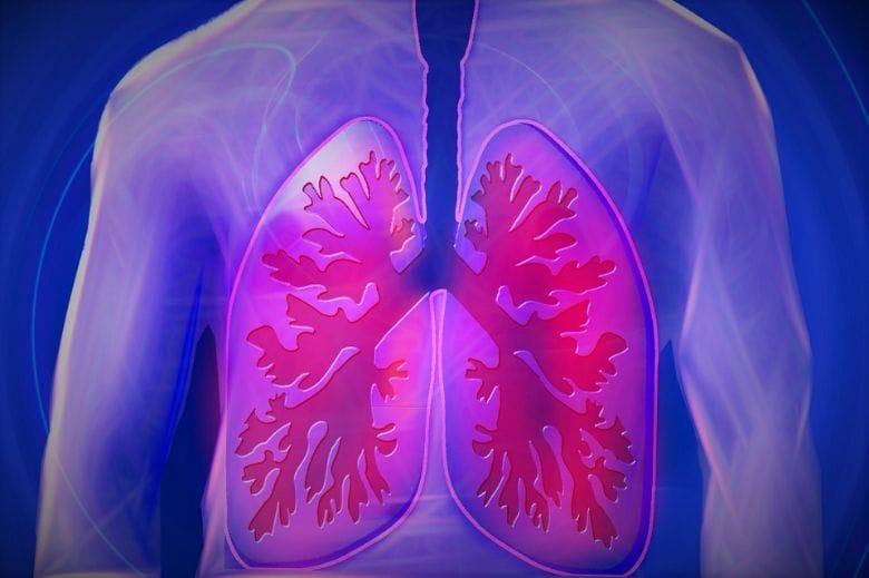 cancer des poumons