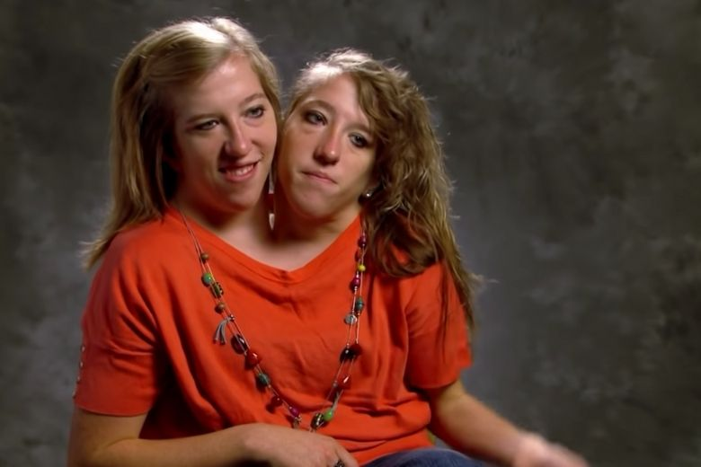 jumeaux siamois